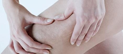 Los cinco mitos sobre la celulitis
