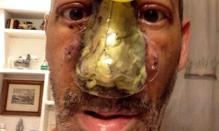Steve Bean mostrando su nariz después de una operación