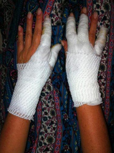 Las quemaduras sufridas por Raquel tras su accidente/Foto:Mitele