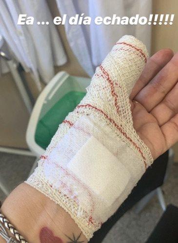 Toñi Moreno sube una foto a su Instagram mostrando su pequeño accidente / Foto: Instagram