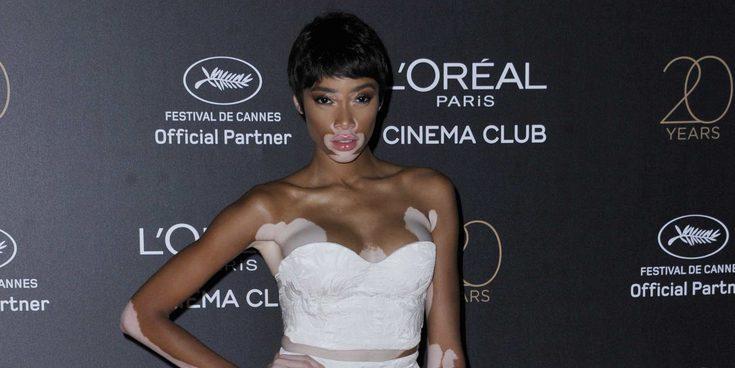 El descuido de Winnie Harlow en Cannes 2017 al dejar al descubierto su ropa interior