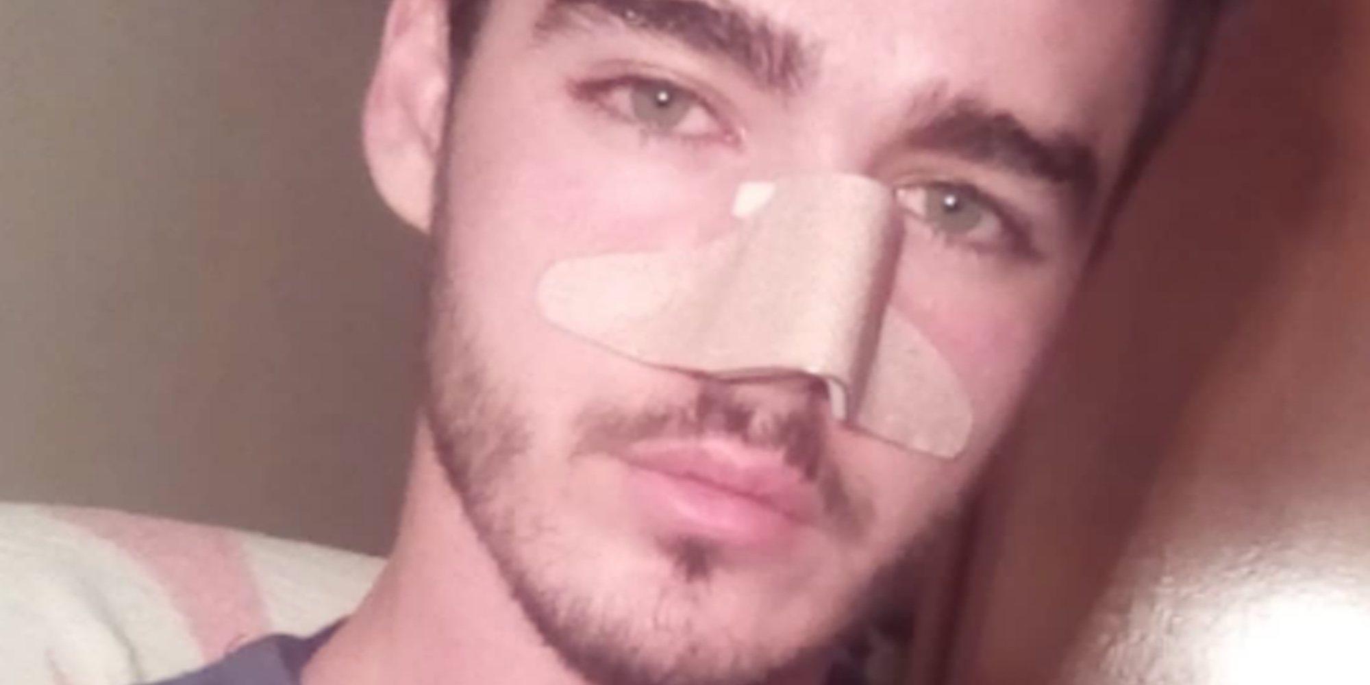 Un joven es brutalmente atacado en plena calle por cuatro menores por ser homosexual