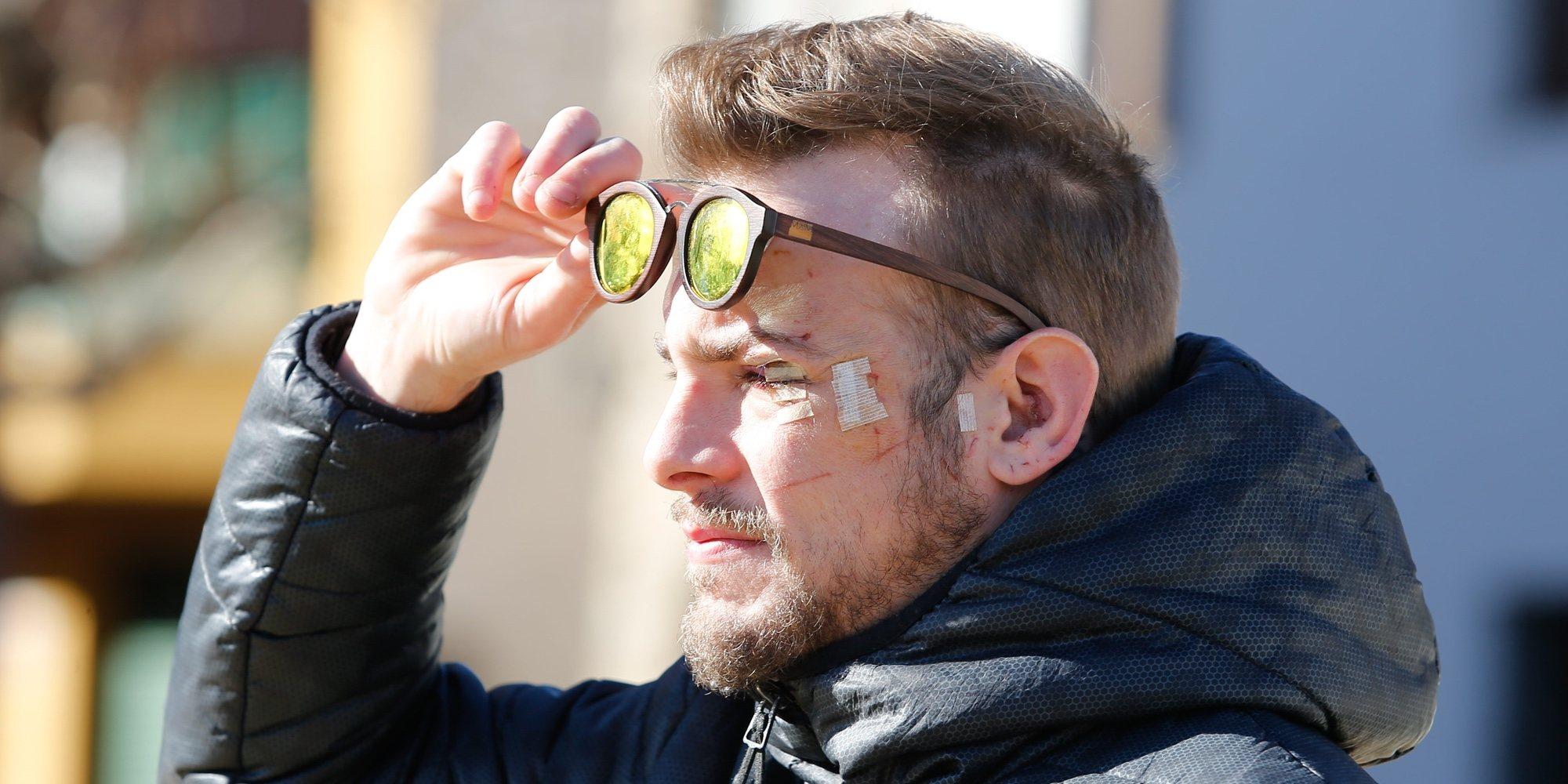 Condenan a año y medio de cárcel y a pagar una multa al hombre que rompió un vaso en la cara a Álex Casademunt