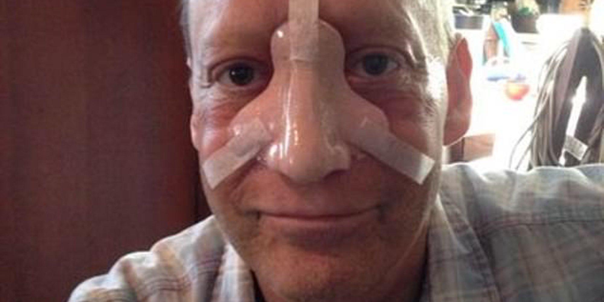 Muere Steve Bean a los 58 años a causa de un raro cáncer de nariz