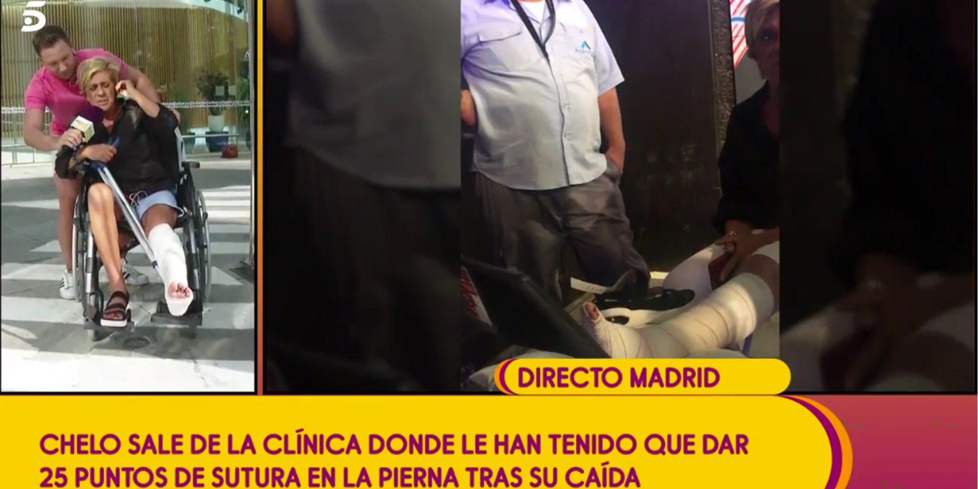 Chelo García Cortés tendrá que ser operada a consecuencia de la caída sufrida en el plató de 'Sálvame'