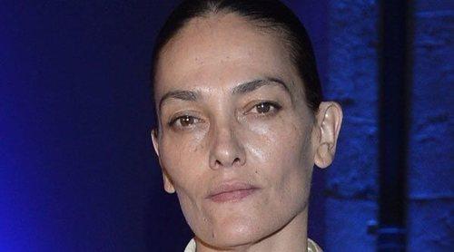 Laura Ponte revela que es tuerta: 'Tuve un herpes muy grave que se complicó'