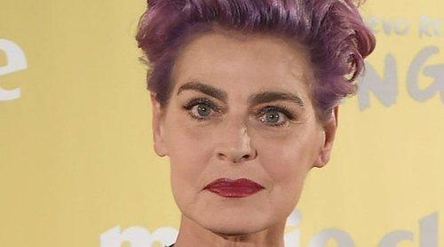 Antonia Dell'Atte sufre un accidente con una sombrilla de playa que le ha desfigurado la mandíbula