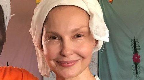 Ashley Judd enseña las imágenes de su traslado cuando casi pierde la pierna en el Congo