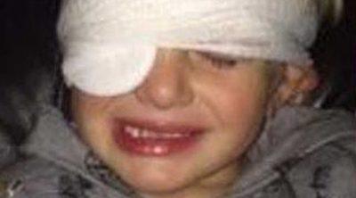 Un niño británico entra en un hospital por una brecha y sale con un ojo pegado