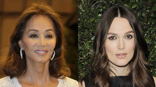 Isabel Preylser, Ariana Grande y otras celebrities que han tenido problemas capilares