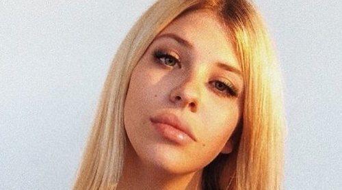Anita Matamoros aclara las dudas sobre sus labios hinchados