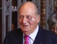 La reaparición del Rey Juan Carlos en otro mal momento: entre el escándalo y el ojo morado