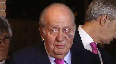 Los asiduos viajes privados del Rey Juan Carlos a Estados Unidos se suman a un hematoma sospechoso en el ojo