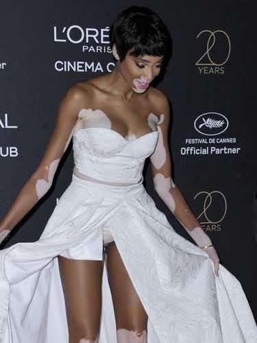 El Descuido De Winnie Harlow En Cannes 2017 Al Dejar Al Descubierto