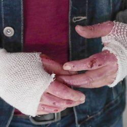 Las heridas de las manos de Manu Tenorio tras su accidente doméstico