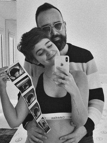 Laura Escanes y Risto Mejide anunciando que van a ser padres