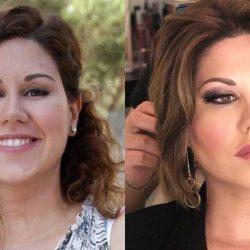 El antes y el después de la cantante Tamara