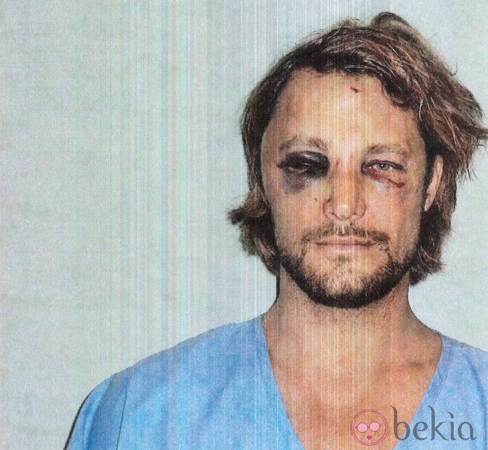 Gabriel Aubry muestra su rostro tras la pelea con Olivier Martínez