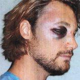 Gabriel Aubry con el ojo morado tras la pelea con Olivier Martínez