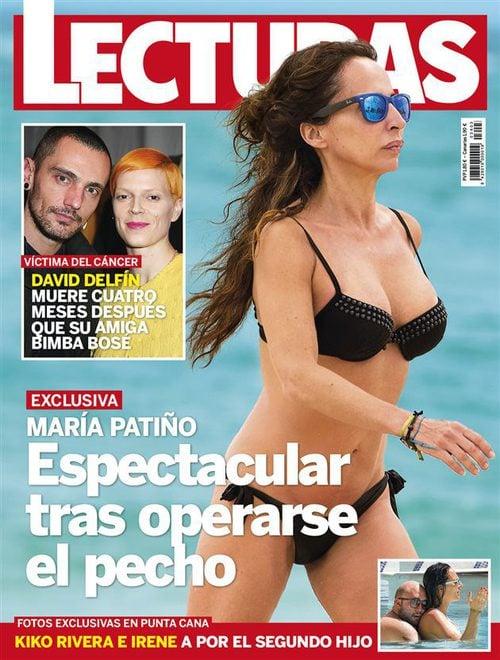 Primeras En Bikini Su Pecho Operación De Patiño Fotos María Tras mn0v8NwO